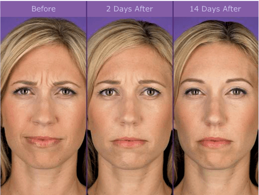 Botox Results graphic